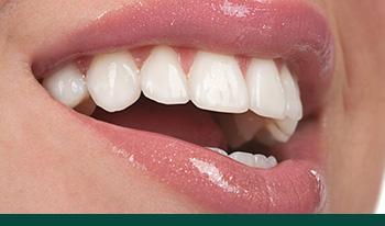 dental-veneers-smile-transformation